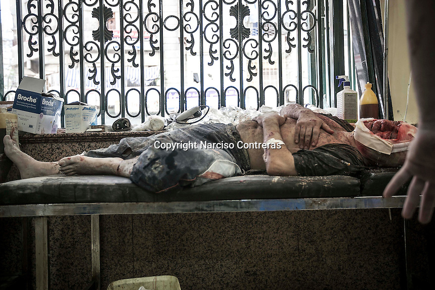 A Syrian civilian lies down on a trolley as he gets medical treatment in a Hospital after was wounded by aircraft shelling in Qadi-Askar neighborhood at the northeast of Aleppo City.