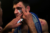 Boxer Pascal Bouchez from Lessines in Wallonia has cream applied to his bruises after being defeated from a boxer from Deinze in Flanders named Azzaoui Reda on March, 23 2013 in Flobecq, Belgium. Although the two boxers are from different language communities which often don't get along well in Belgium, these two men are actually friends and training partners. Although he lives in Flanders and speaks Dutch, Reda came in to the ring wearing shorts printed like an Algerian flag in homage to his roots. Identity and language in Belgium are often far more complex than the polarized relations between French and Dutch seem.