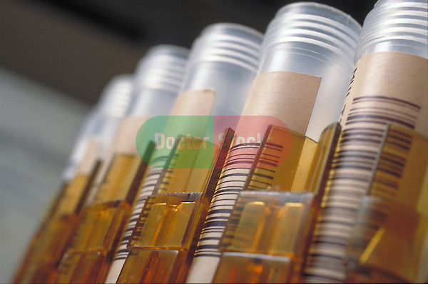 vials in rack with bar coding waiting to be analyzed
