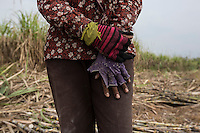 "Cambodia - Kampong Speu Province - Chei Reoun's hands, 35, working in the sugarcane plantation. In 2010, she stripped of their land. Chei was forced to accept a compensation of 70,000 riel (around 17 USD) for 1,5 hectares of land, after the commune chief warned her that the company would have taken her land with or without her consent. ""With the plantation, they told us that the work would have knocked at our door. It is true, but the work is just about sweating and cutting all day long"" she complains. While Chei is still able to pay for the school fees of her three children, she is growing worried about their future. ""Without land, they will grow poorer and poorer"" she says."