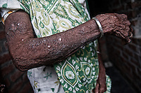 An old lady's hand filled with rashes and blisters. She used to work in the fields when she got afflicted by the skin disease that hasn't cured even after all these years. The agricultural fields are irrigated by waste water containing harmful chemicals from the tanneries in Jajmau area, Kanpur, Uttar Pradesh, India, Arindam Mukherjee.