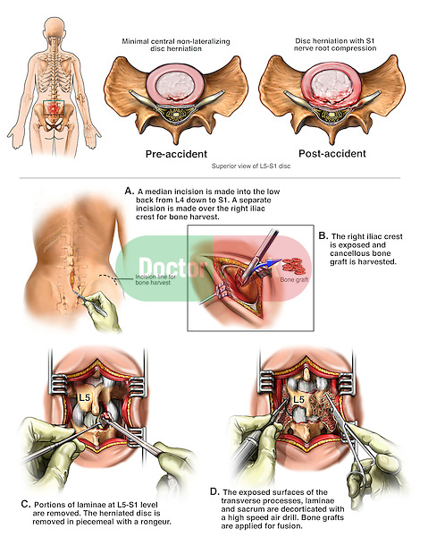 Spine Surgery: Worsening of Lumbar Disc Herniation at L5-S1 with  Discectomy (Diskectomy), Laminectomy and Spinal Fusion.