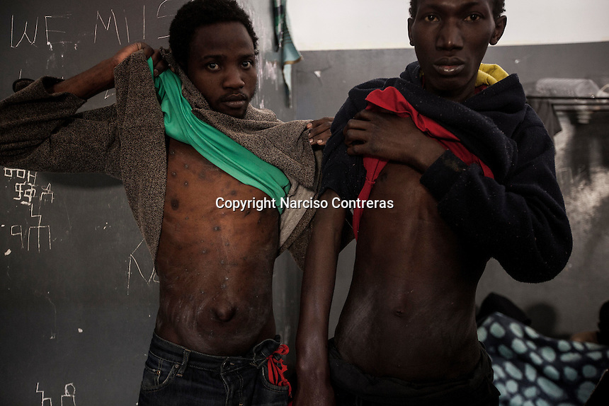 Sub-Saharan illegal migrants reveal their skin diseases and signs of beatings allegedly caused by the guards at the Garabuli detention centre in Libya.