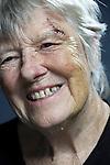 smiling senior woman with head injury