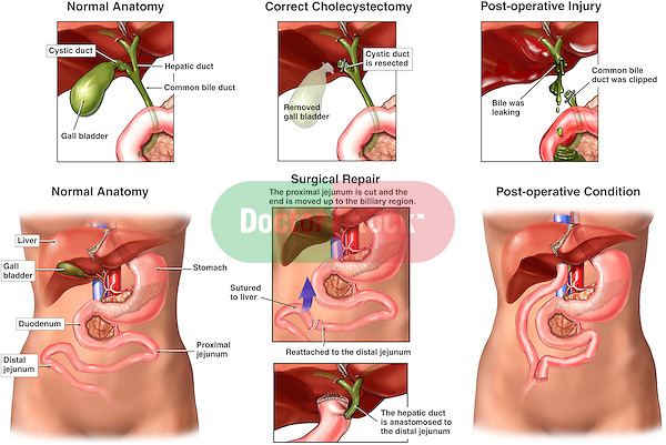 Laparascopic Cholecystectomy (Gallbladder Removal Surgery) - Iatrogenic Bile Duct Injury and Repair. Depicts  post-operative complications to a cholecystectomy (gall bladder removal). In this case, it reveals the proper clipping and ligation removal at the level of the cystic duct, vs. the improper removal with damage to the biliary system. The second portion of the exhibit shows steps of the surgical correction to the repair the damaged ducts.