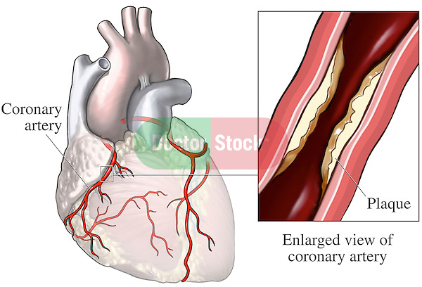 Coronary Artery Disease. This medical exhibit pictures an anterior (front) view of the heart and coronary arteries. A second graphic displays an enlarged cut-away view of a coronary artery showing plaque within the lumen of the vessel.