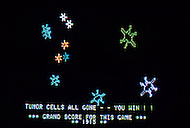 Houston, Texas - July 13, 1984. Scenes from the interactive video game 'Killer T-Cell', designed by Dr. Elton Stubblefield at the Anderson Hospital. This game was designed for young patients who suffer from cancer, and it simulates the reaction of chemotherapy to the tumor cells inside the body.