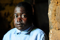 TANZANIA Bukoba, village Igombe, ERENEUS EMANUELS, 18 years, has HIV positive, he is suffering from side effects of aids medication, skin disease / TANSANIA Bukoba, Familie von Frau ASTERIA EVALISTA im Dorf Igombe, ihr Enkel ERENEUS EMANUELS (18 Jahre) ist an HIV erkrankt und hat durch die Medikamente schwere Nebenwirkungen wie Hautausschlaege