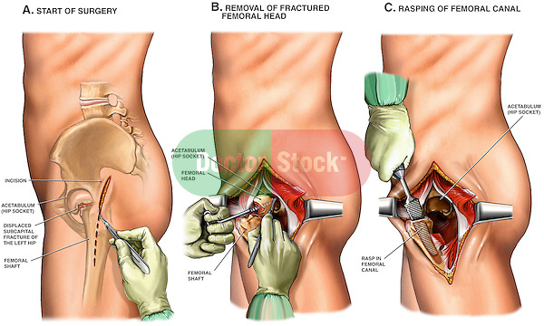 This custom surgical exhibit features three lateral chronological views of a male left hip detailing the initial steps of a typical partial hip replacement (femoral head component). Images and text include the incision site, exposure with excision of the diseased femoral head,  preparation of the femoral canal with a rasp for placement of a prosthesis (femoral prosthesis not shown to allow for discussion of different types of components).