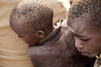Somalia Drought: Refugees Crisis in Dadaab, Kenya
