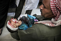 In this Thursday, Nov. 01, 2012 photo, a Syrian children lays down on his father arms as he arrives to one hospital injured by a lost bullet in between his eyes in the nearby Tarik Al-Bab neighborhood in Aleppo, the Syrian's largest city. (AP Photo/Narciso Contreras).