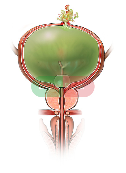 healing rent in the urinary bladder wall is burst opened with the pressure put in by fiilling the bladder with contrast material