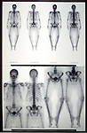 Bone scan of adult woman