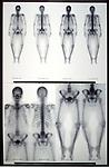 Bone scan of adult woman