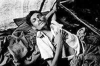 This 30-year-old man broke his leg during forced labor in Burma.  He and his family fled to Bangladesh but he has not been able to receive any medical assistance. (2009)