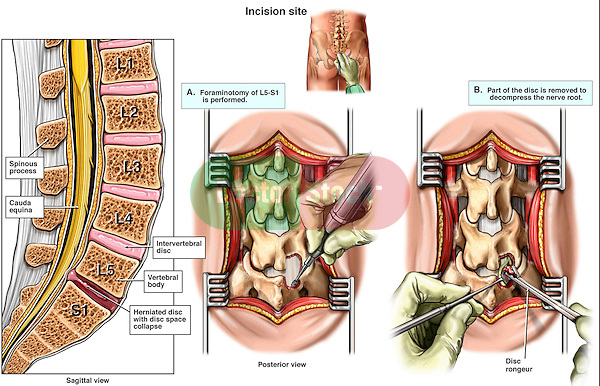 Back Surgery - Recurrent L5-S1 Disc Herniation with Discectomy (Diskectomy).