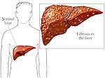 This medical illustration depicts cirrhosis of the liver. It emphasizes the increase in development of excess fibrous connective tissue in the liver.