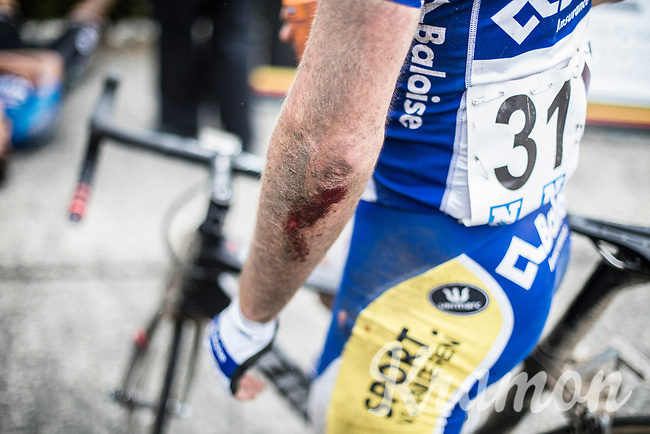 Piet Allegaert (BEL/Sport Vlaanderen-Baloise) shows his wounds after the finish. He crashed while he was in the front group on the last 10km.<br /> <br /> 2nd Dwars door het Hageland 2017 (UCI 1.1)<br /> Aarschot > Diest : 193km