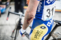 Piet Allegaert (BEL/Sport Vlaanderen-Baloise) shows his wounds after the finish. He crashed while he was in the front group on the last 10km.<br /> <br /> 2nd Dwars door het Hageland 2017 (UCI 1.1)<br /> Aarschot &gt; Diest : 193km