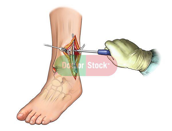 Fibular fracture fixation with plate and screws