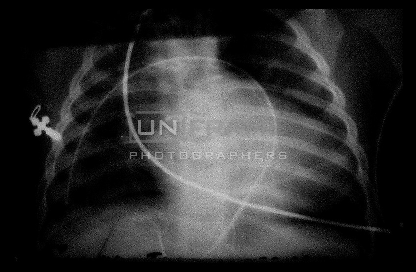 3 month old child chest with little metal orthodox crucifix seen through X-ray machine.