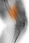 Colorized x-ray showing a displaced distal femur fracture in a 67 year old woman with osteoporosis.