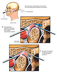 This medical exhibit depicts arthroscopic temporomandibular (TMJ) joint surgery to repair an anterior displacement (dysfunction) of the joint meniscus. The first surgical step pictures the open joint capsule from an enlarged cut-away view showing the arthroscopic instruments pulling the disc back into proper anatomical alignment.  The second illustration shows a few small sutures holding the meniscus securely in place.