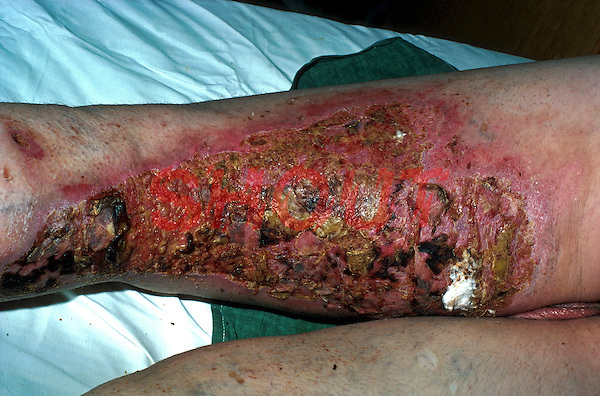 Full and partial thickness burn to leg caused by chip pan oil. This image may only be used to portray the subject in a positive manner..©shoutpictures.com..john@shoutpictures.com