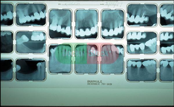 dental x-rays on lightbox