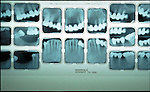 dental x-rays on lightbox
