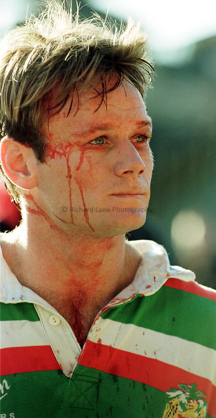 Photo. Richard Lane. .Saracens v Leicester. 11/10/98. Pat Howard shows the effects of a hard game.