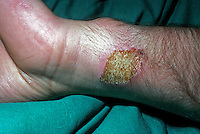 Burns to wrist caused by camping stove. This image may only be used to portray the subject in a positive manner..©shoutpictures.com..john@shoutpictures.com