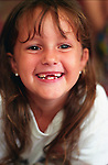 girl (6 years) missing front two teeth smiling at camera