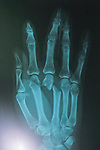 X-Ray Of Kris Timmerman's Hand Bitten By Black Bear