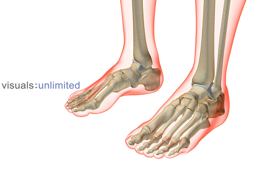 The bones of the feet | Visuals Unlimited