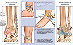 Traumatic Osteoarthritis of the Ankle Joint with Surgical Debridement and Fusion Surgery.