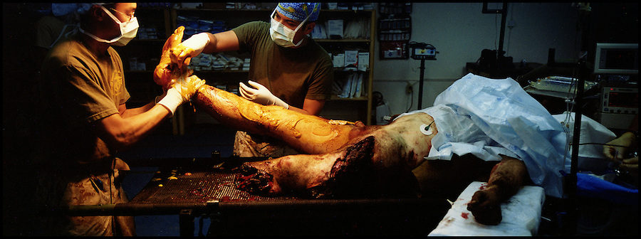 Navy surgeons and corpsmen with Ramadi Surgical rush to prepare a gravely wounded soldier for surgery in the operating room at Charlie Medical Co. after the soldier's Humvee was demolished in an IED strike in Ramadi, Iraq on Fri. Oct. 06, 2006. The extent of his injuries required that his left leg be amputated.<br />