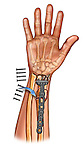 Osteostomy and Wrist Fiixation Surgery; this medical illustration illustrates an osteotomy during a wrist fixation surgery.