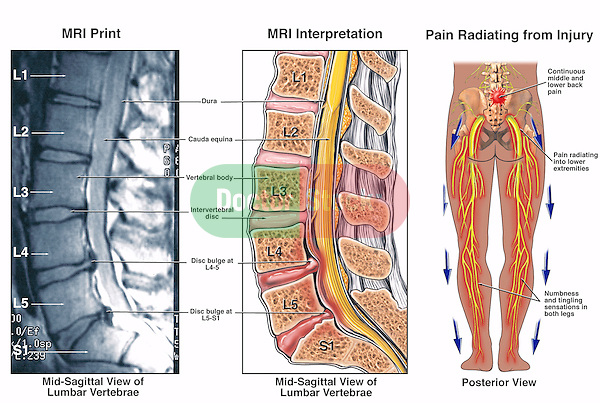 Low Back Pain - L4-5 and L5-S1 Lumbar Injuries. Depicts widespread pain in the lower body from nerve compression injury in the lumbar spine area. Features an x-ray film clearly showing bulging vertebral (intervertebral) discs (disks) compared with an illustrated interpretation.