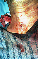 Stab wound to neck which was fatal. This image may only be used to portray the subject in a positive manner..©shoutpictures.com..john@shoutpictures.com