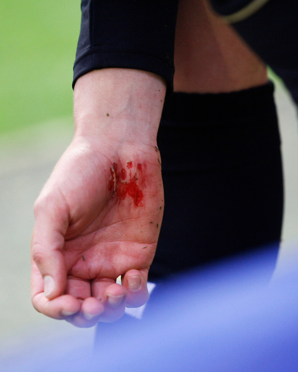 General view of Bournemouth's Steve Cook's hand after he collided into the advertising boards<br /> <br /> Photo by Jack Phillips/CameraSport<br /> <br /> Football - The Football League Sky Bet Championship - Leicester City v Bournemouth - Saturday 26th October 2013 - King Power Stadium - Leicester<br /> <br /> &copy; CameraSport - 43 Linden Ave. Countesthorpe. Leicester. England. LE8 5PG - Tel: +44 (0) 116 277 4147 - admin@camerasport.com - www.camerasport.com