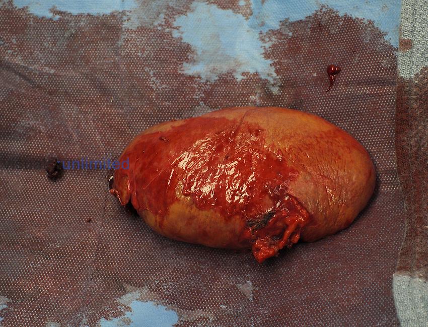 Spleen following splenectomy