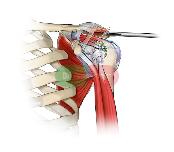 Shoulder Acromioplasty; this medical illustration illustrates an acromioplasty in a rotator cuff repair.