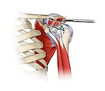 Shoulder Acromioplasty; this medical illustration illustrates an acromioplasty in a rotator cuff repair.