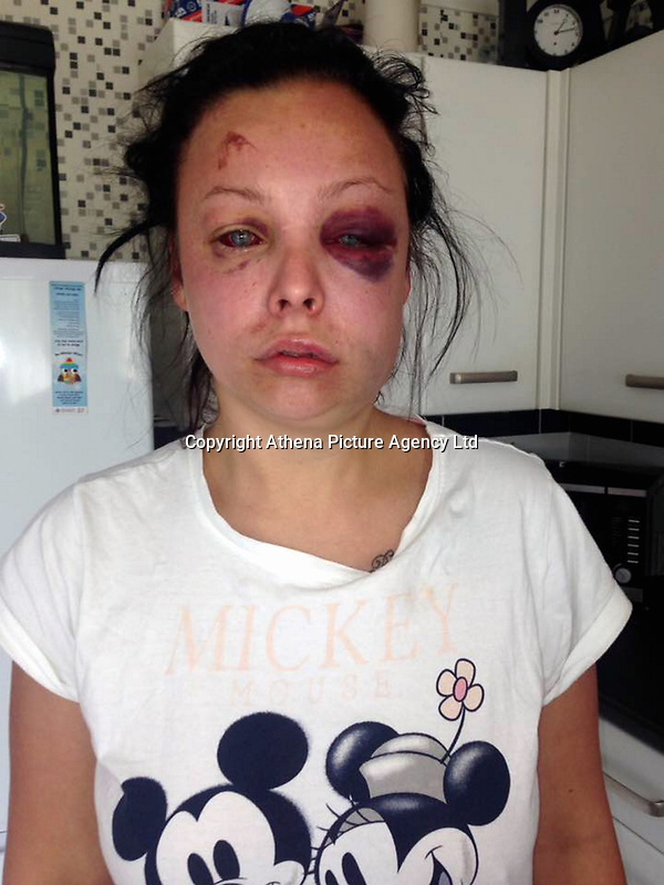 """Pictured: Jenna Thomas after she was attacked, image taken from her open social media account.<br /> Re: A 22 year old mum says she is """"terrified to go home"""" after she says she was strangled and severely beaten by her partner of four months.<br /> Jenna Louise Thomas, of Crindau, Newport, says the prolonged attack by her partner, Jamie Webber, on Sunday night was witnessed by her four-year-old son.<br /> She has been left with two black and bloodshot eyes and a swollen face.<br /> Miss Thomas, who is also known as Jenna Francis, says Jamie Webber is now on the run.<br /> Gwent Police confirmed that they are actively looking for him and have warned people not approach him."""