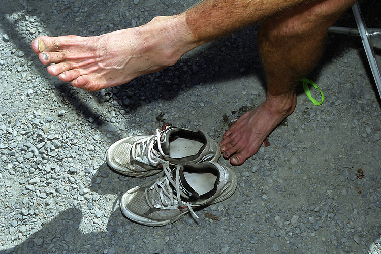 Jeff Bannish cools his heels and stretches his toes after winning the Resurrection Pass Trail 100-Miler ultramarathon in August 2004. The course requires runners to climb - and descend - about a mile of vertical elevation through the Chugach National Forest near Cooper Landing and Hope, Alaska.