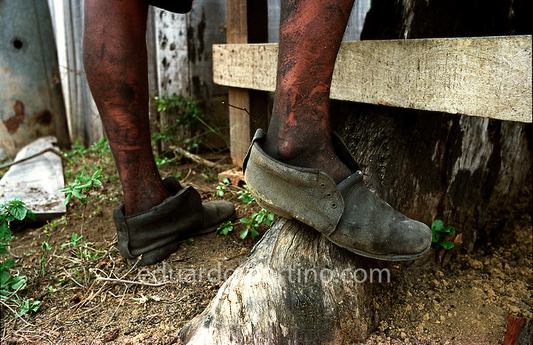 Modern-day Slavery in Brazil<br /> The feet of a worker rescued from unfree labour conditions on a charcoal-producing farm in Para. Due to widespread unemployment and poverty, many workers risk their lives and freedom to take work in neighbouring states on farms that use unfree labour. This form of modern-day slavery is implicated most often via a fraudulent debt, used as an excuse to keep workers in the farm while they owe money to the farmer. They are forced to buy everything, from tools to food, from the farmer's shop, at inflated prices. The debt is never cleared and the workers are effectively trapped.
