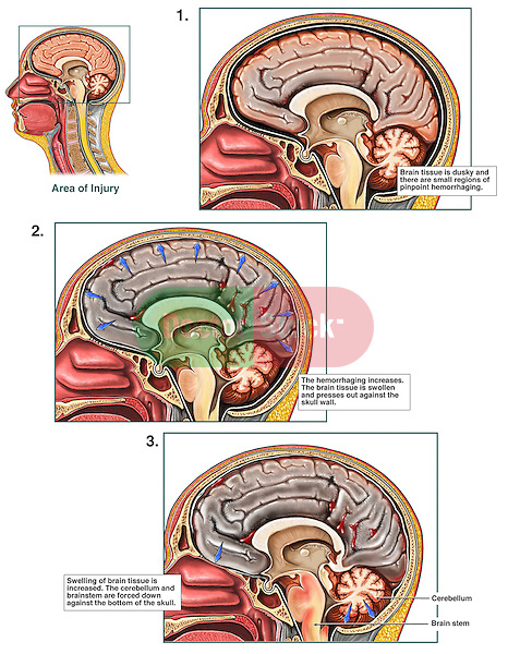 Progression of Anoxic Brain Damage