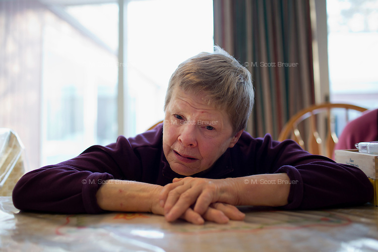Caroline Turner, 62, is a resident at the Fernald Developmental Center in Waltham, Massachusetts, USA.