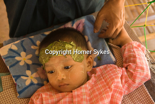 Sick child with poultice across forehead. Bagan Pagan Burma Myanmar 2006